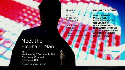 Discovery Channel – Meet the Elephant Man