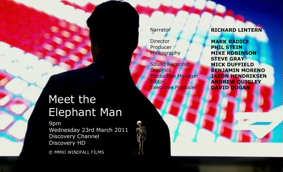 Meet the Elephant Man - Documentaire