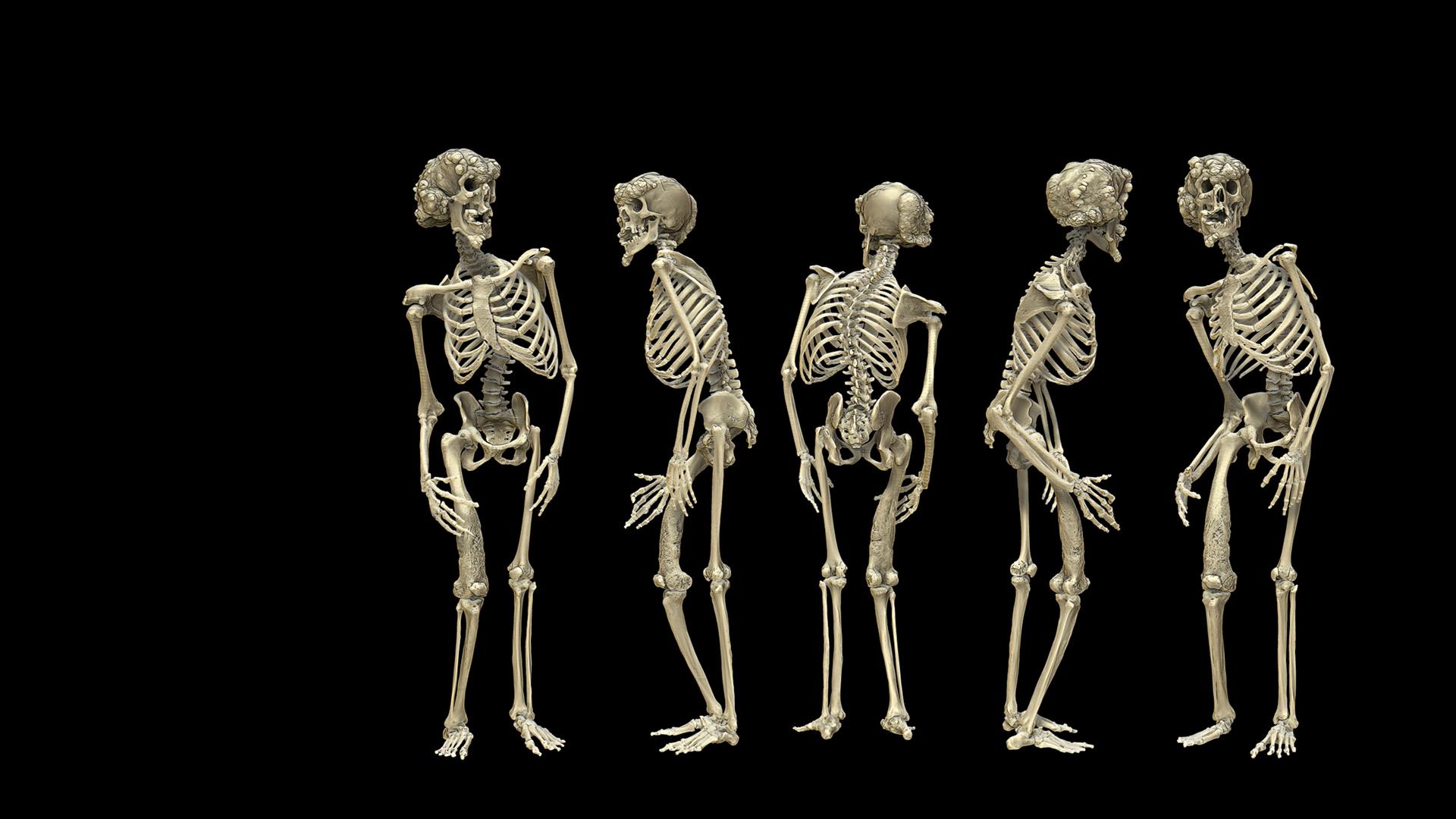 Elephant Man - Joseph Carrey Merrick - Modèle 3D du squelette