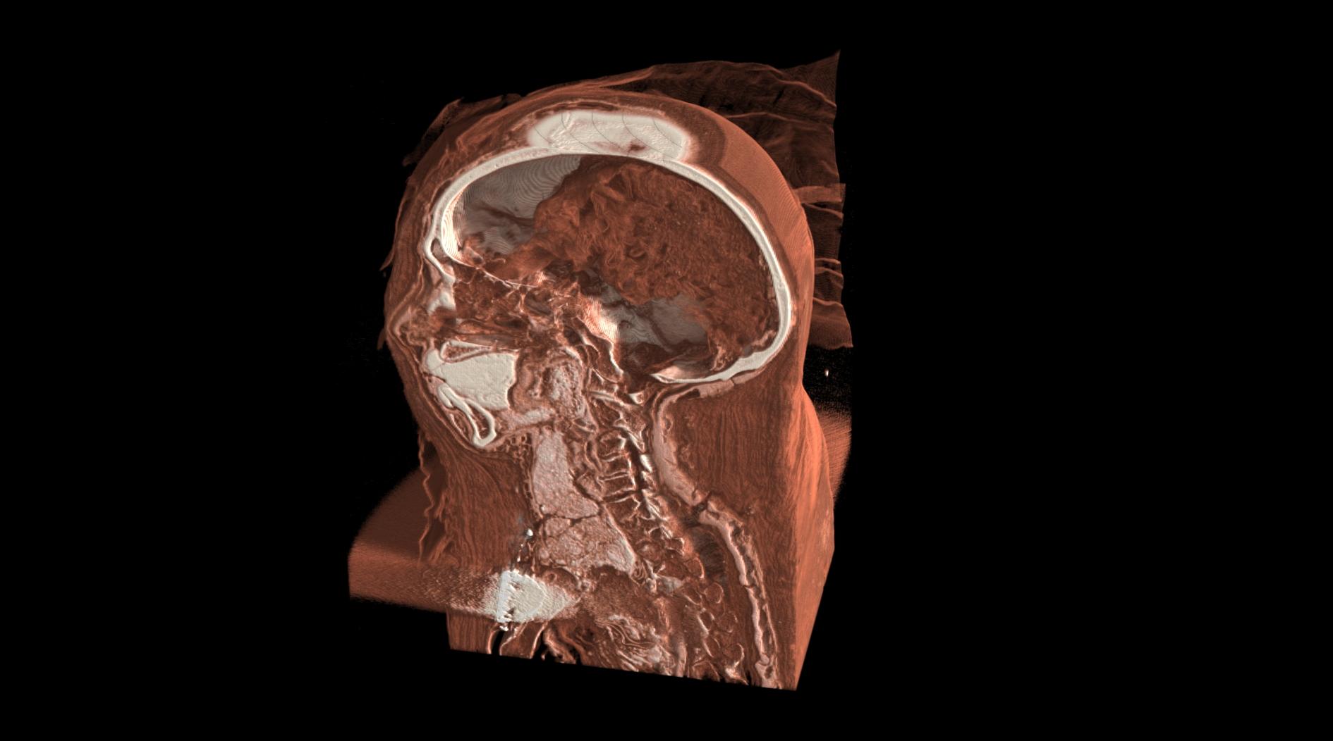 Momie Seramon - Tomographie 3D