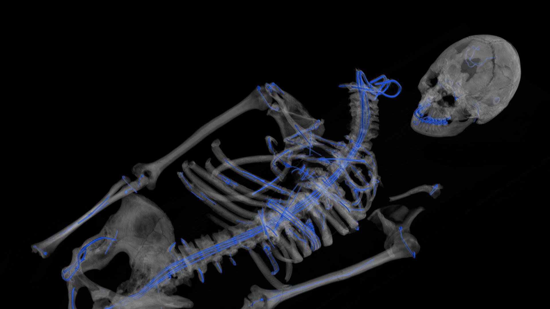 Sépulture de Téviec - Tomographie rayons X - 3D